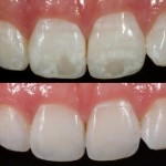 Dental White Spot Removal