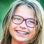 How do I know if my child needs braces?